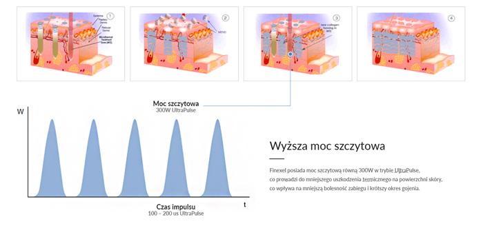 Wyższa moc szczytowa Lasera CO2 Finexel